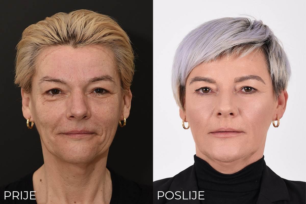 Zagrepčanka Jadranka pokazala je lice prije o poslije tretmana u Poliklinici Bagatin