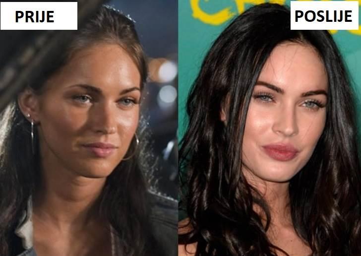megan fox prije i poslije operacija